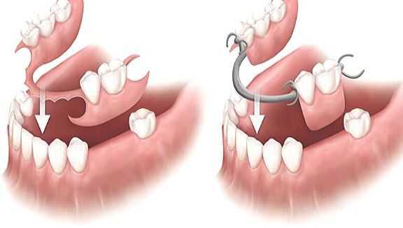Khung hàm tháo lắp răng 2 - Hàm khung tháo lắp là gì? Ưu nhược điểm và những lưu ý cần biết
