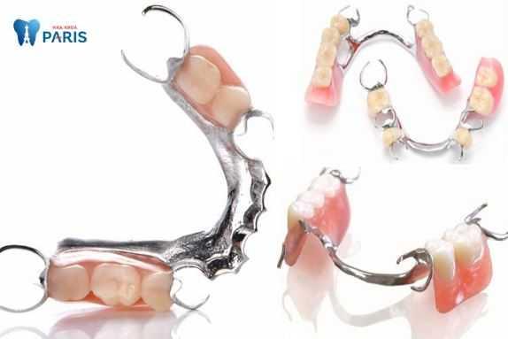Khung hàm tháo lắp răng