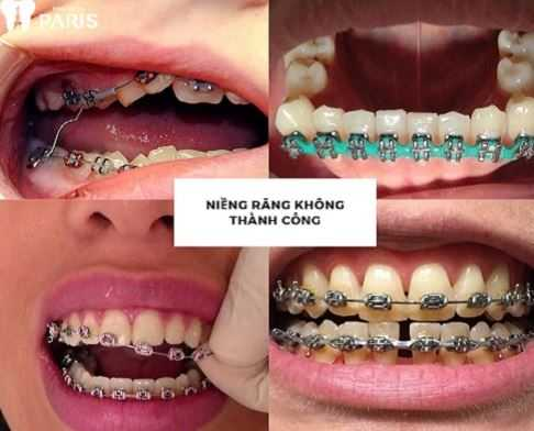 Niềng răng 1 - Niềng răng sai cách gây ra những hậu quả nghiêm trọng nào ?