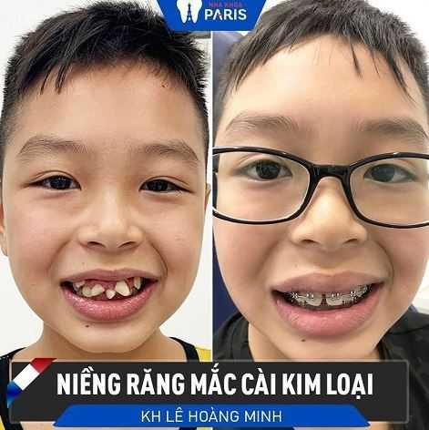 Niềng răng bé Hoàng Minh
