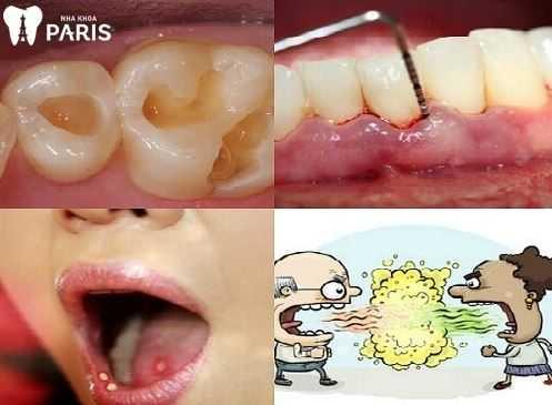 Niềng răng sai cách